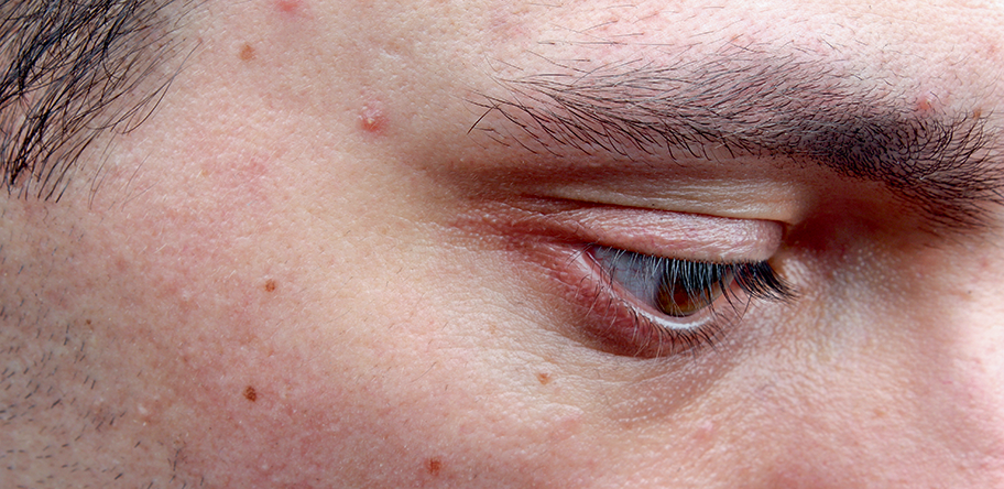 70% of patients with persistent acne test positive for insulin resistance