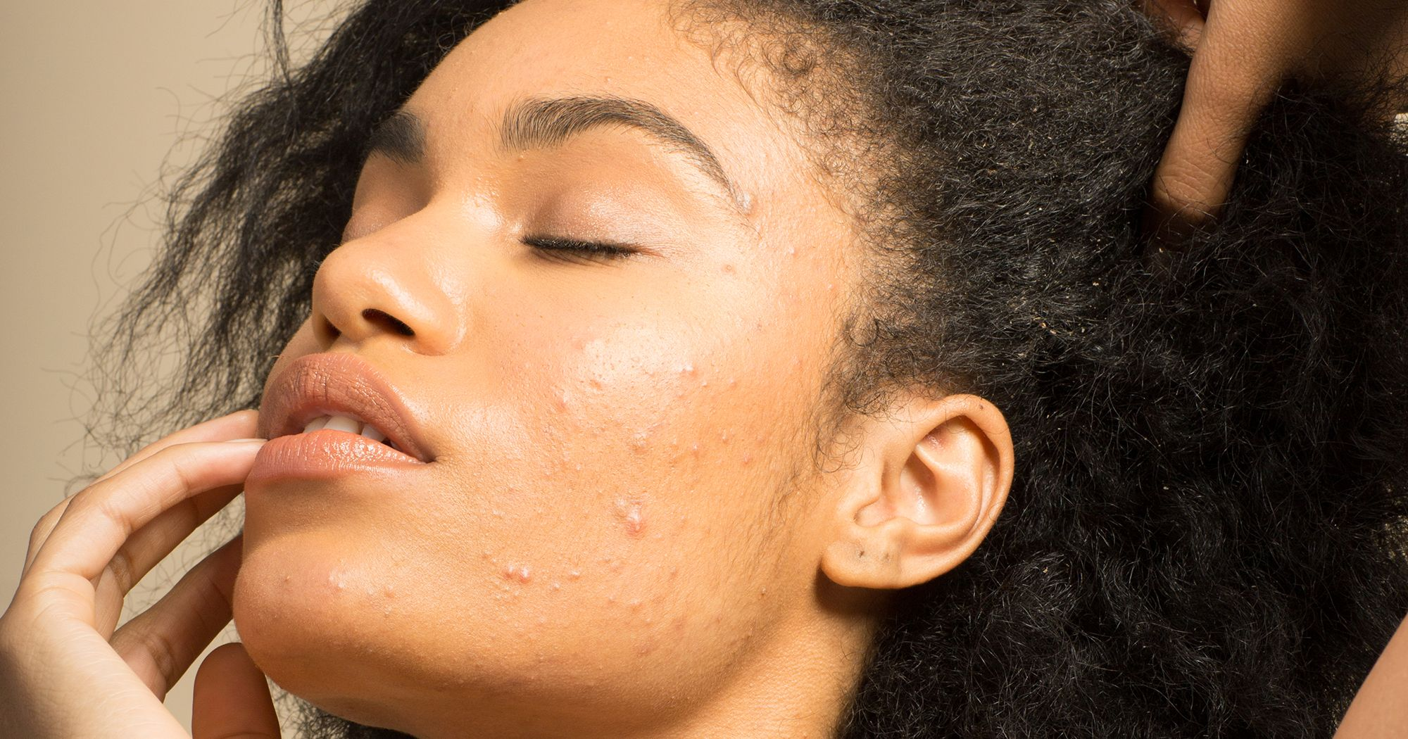 This Is Proof That Birth Control Could Be A Game-Changer For Your Acne